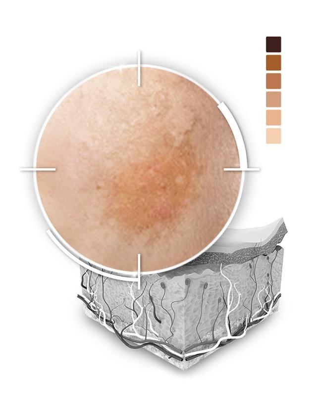 Iperpigmentazione